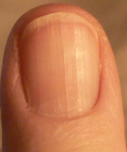 Ridges on your fingernails is