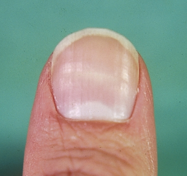 Transverse Nail Ridges: Horizontal lines may be a marker of a past episode