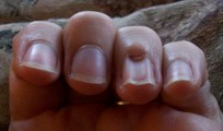 Mary S Nail Indentation Was A Mystery We Asked If Anyone Knew Anything About This Phenomenon And L Answered