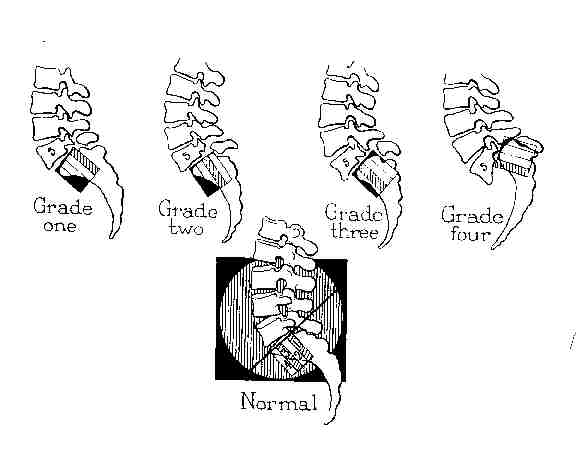 grade 1 spondylolithesis Isthmic spondylolisthesis results from a stress fracture across the pars articularis   grade 1 is a slip of 0-25 % grade 2 is a slip of 25-50% (x-ray) grade 3 is a.
